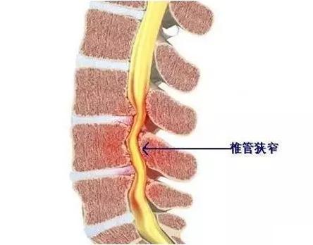 出現這些癥狀,可能是頸椎管狹窄了! - 華發網繁體版