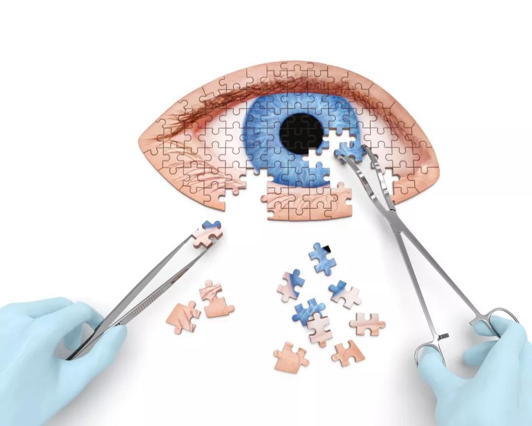 角膜塑形鏡適合哪些人佩戴?