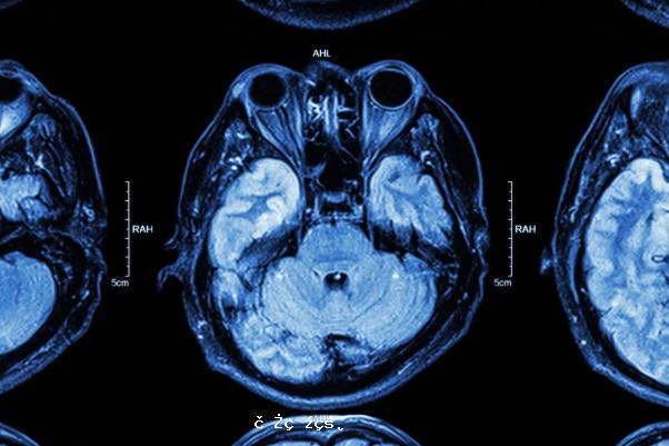 《放射學》:新冠病毒可能在眼內形成結節,破壞視力