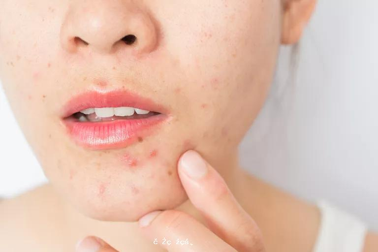 《國際皮膚病雜誌》:十年研究證實,常吃這些食品易導致痤瘡發作