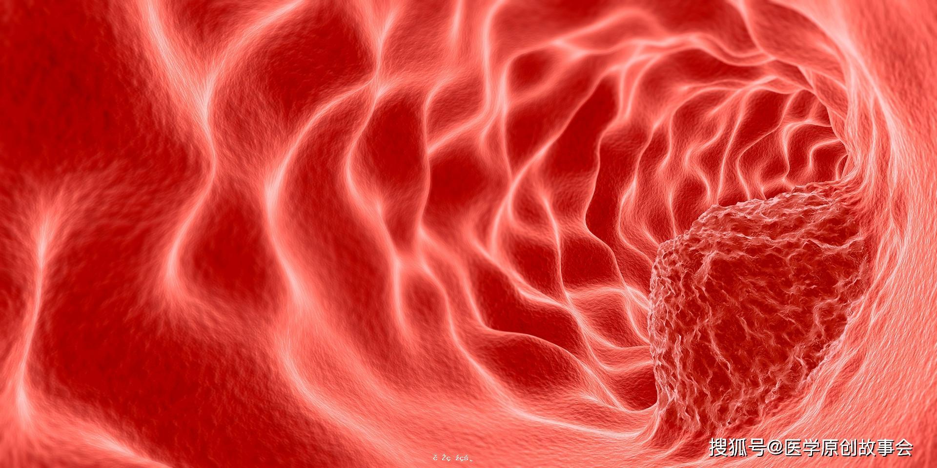 晚期癌癥只能活活痛死?癌痛到底有多痛?一個醫生終於說了大實話